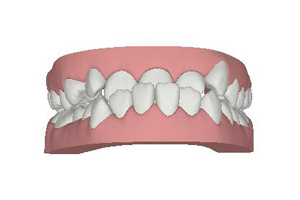 Winchester_Teeth_0001_Layer 4