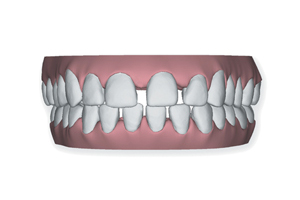 Winchester_Teeth_0002_Layer 3