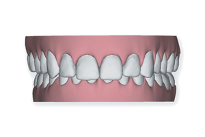 Winchester_Teeth_0003_Layer 2