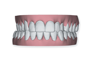 Winchester_Teeth_0004_Layer 1