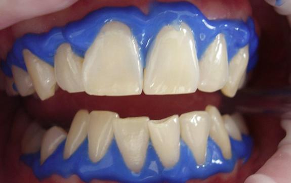 Teeth Whitening Temecula - Winchester Dental Group
